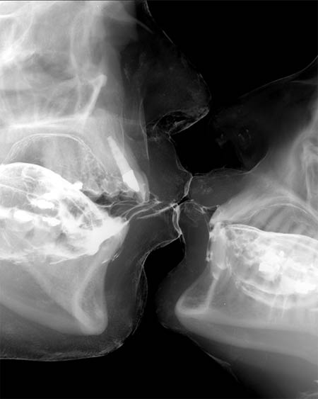 x-ray-kiss.jpg